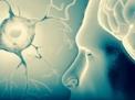 La Sindrome Clinicamente Isolata (CIS)