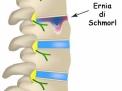 Le ernie del disco verticali o di Schmorl