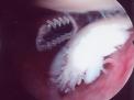Le lesioni degenerative del capo lungo del bicipite