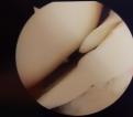 Lesione del menisco: meniscectomia, sutura o trattamento conservativo