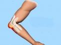 Epitrocleite o gomito del golfista