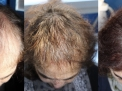 alopecia-androgenetica