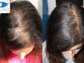 calvizie,cais,alopecia