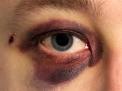 Ho un occhio nero