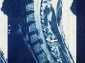 Neurostimolazione: un computer sotto pelle contro il dolore atroce