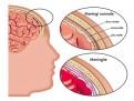 Parkinsonismo vascolare