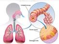 broncopneumopatia-cronica-ostruttiva