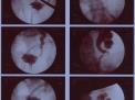 Trattamento della iperidrosi (eccesso di sudorazione) nella persona con lesione midollare