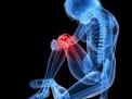 Infiltrazioni di acido ialuronico per il trattamento sintomatico dell'osteoartrosi
