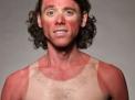 Perché le prime scottature solari possono favorire il melanoma: come difendersi