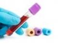 Iperprolattinemia: cosa è e come affrontarla