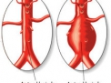 Aneurisma dell'Aorta Addominale (AAA)