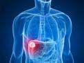 Radioterapia stereotassica (SBRT) per le metastasi epatiche: nuova opzione efficace e non invasiva