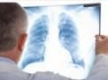 diagnosi-asma