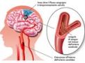 I traumi cervicali come causa di ictus