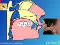 Otite Ricorrente: colpa dei denti?
