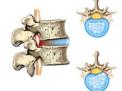 Ernia del disco: trattamenti mini-invasivi percutanei per la protrusione o l'ernia contenuta