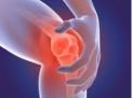 condroprotezione-infiltrazione-paziente-artrosico