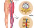 La sciatica di interesse chirurgico non causata da ernia del disco