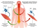 Traumi cranio-spinali e SLA